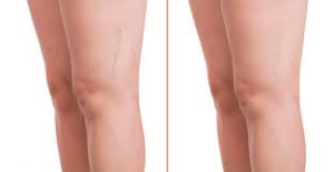 Varicose Veins Treatment Lexington KY